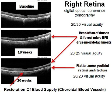 Retina Tomography: comparison