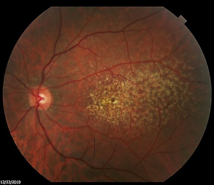 Retinal Image in 2010